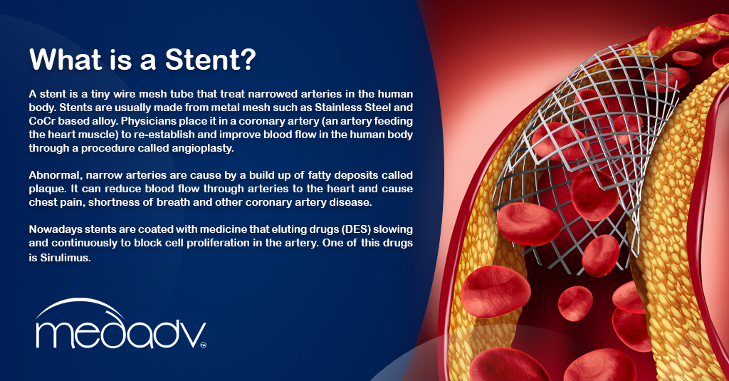 What is a Stent - MEDAS USA
