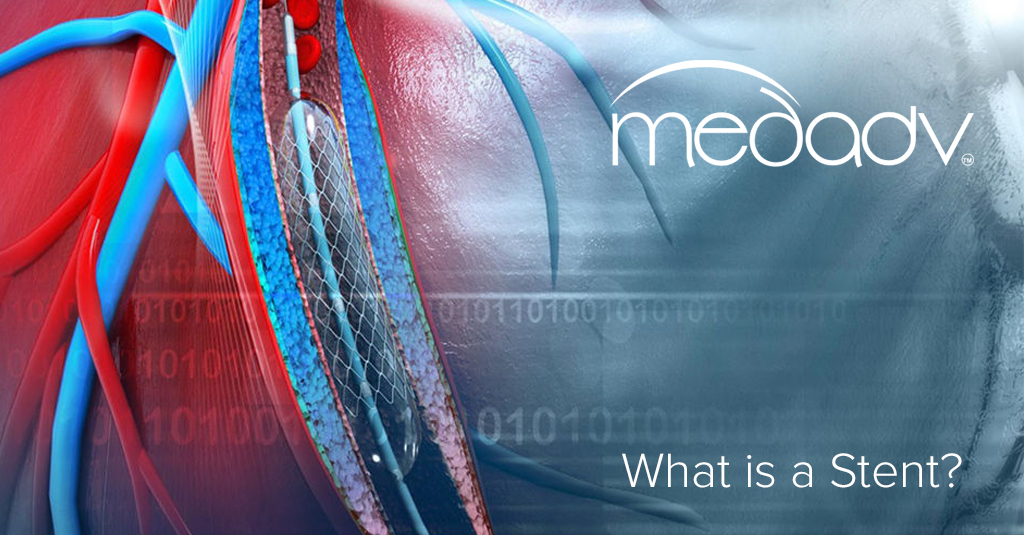 What is a Stent? MEDAS USA Blog